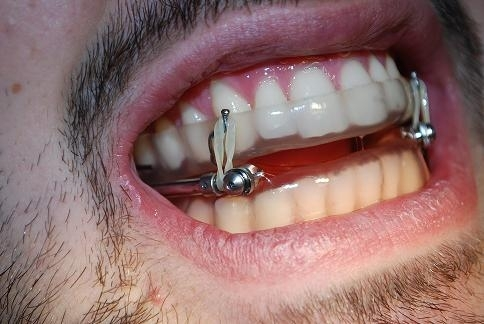 IST Oral Appliance